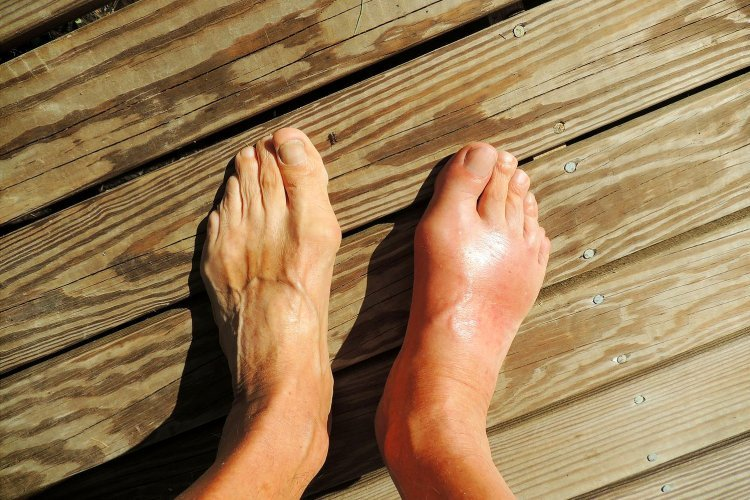 Is Alkaline Water Good for Gout? The Scientific Proof You Need to See